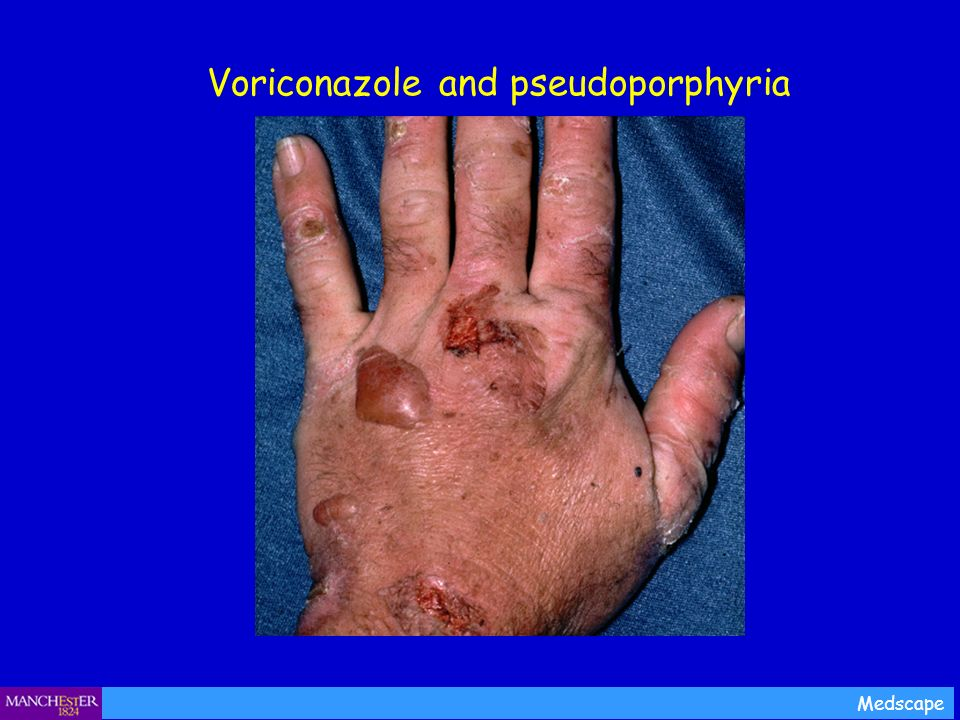Voriconazole and pseudoporphyria