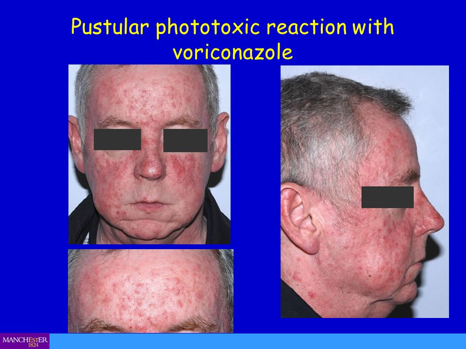 Pustular phototoxic reaction with voriconazole
