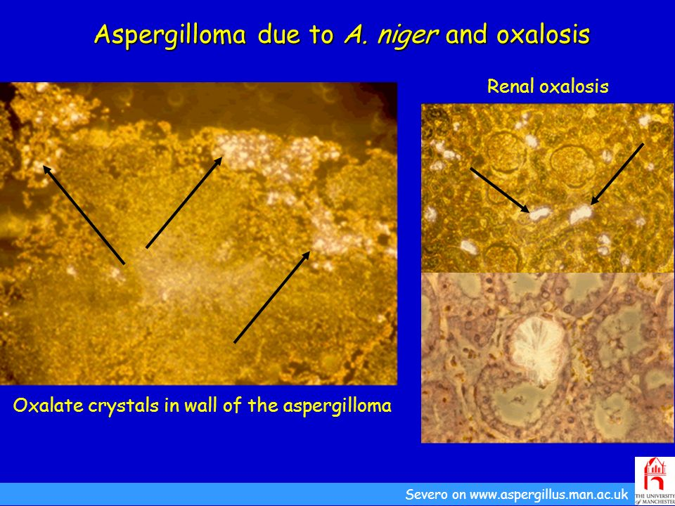 Aspergilloma due to A. niger and oxalosis