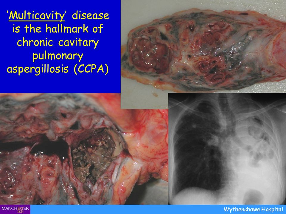'Multicavity' disease is the hallmark of chronic cavitary pulmonary aspergillosis (CCPA)