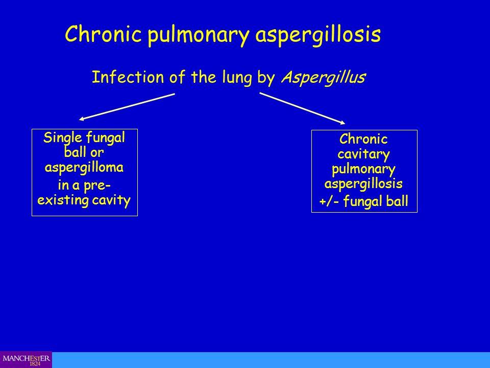 Chronic pulmonary aspergillosis
