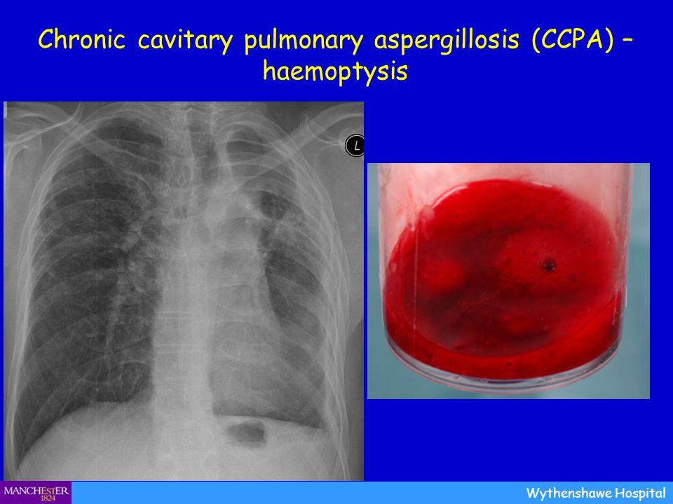 Chronic cavitary pulmonary aspergillosis (CCPA) – haemoptysis