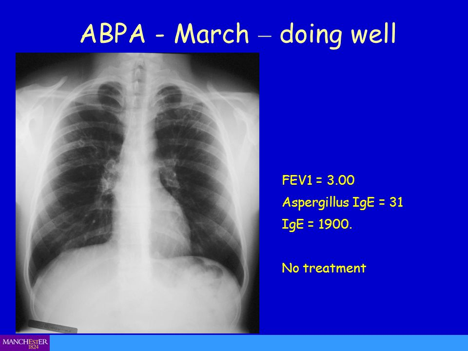 ABPA - March – doing well