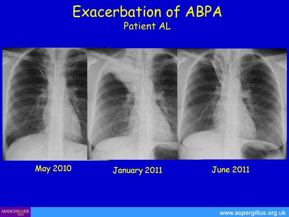 Exacerbation of ABPA Patient AL