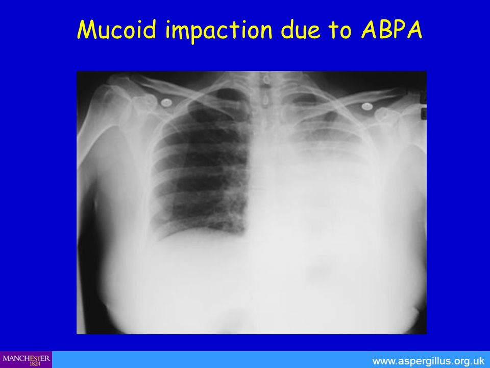 Mucoid impaction due to ABPA