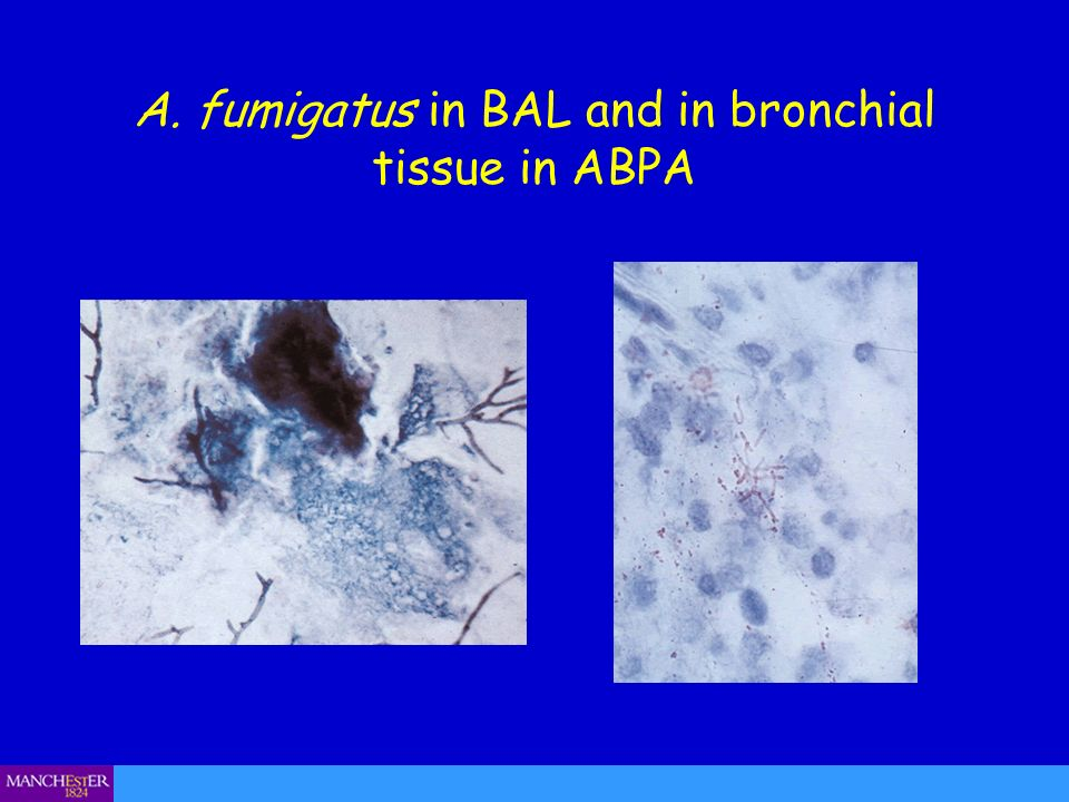 A. fumigatus in BAL and in bronchial tissue in ABPA