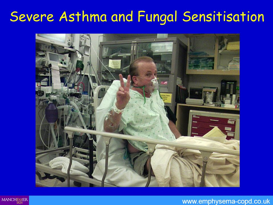 Severe Asthma and Fungal Sensitisation