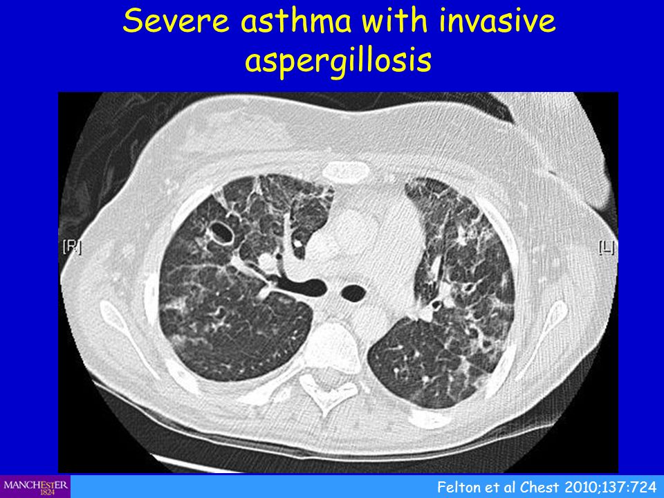 Severe asthma with invasive aspergillosis