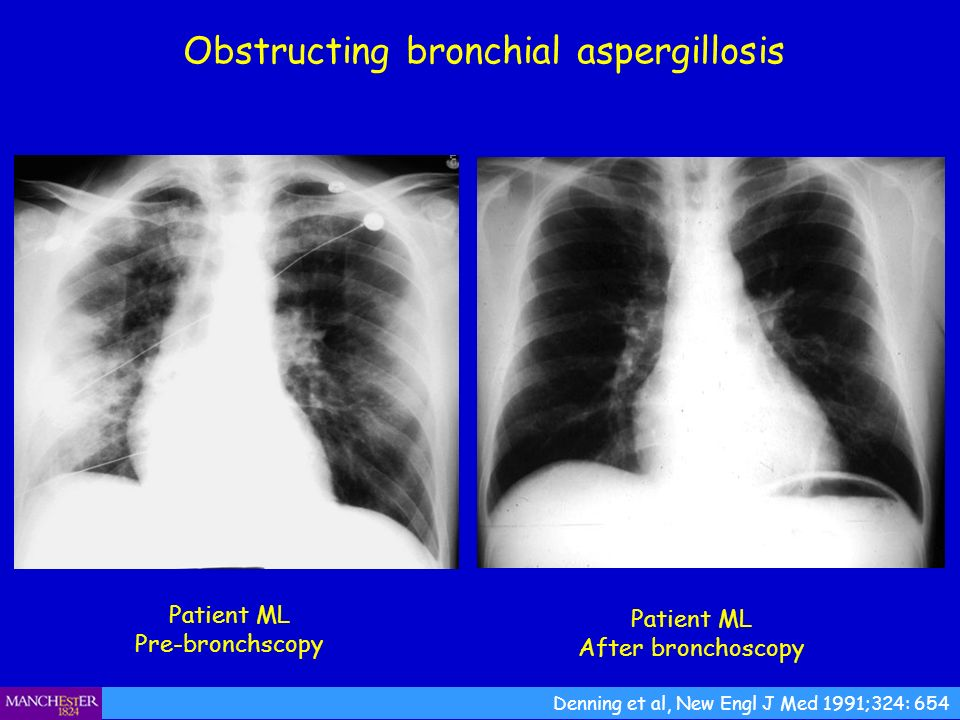 Obstructing bronchial aspergillosis