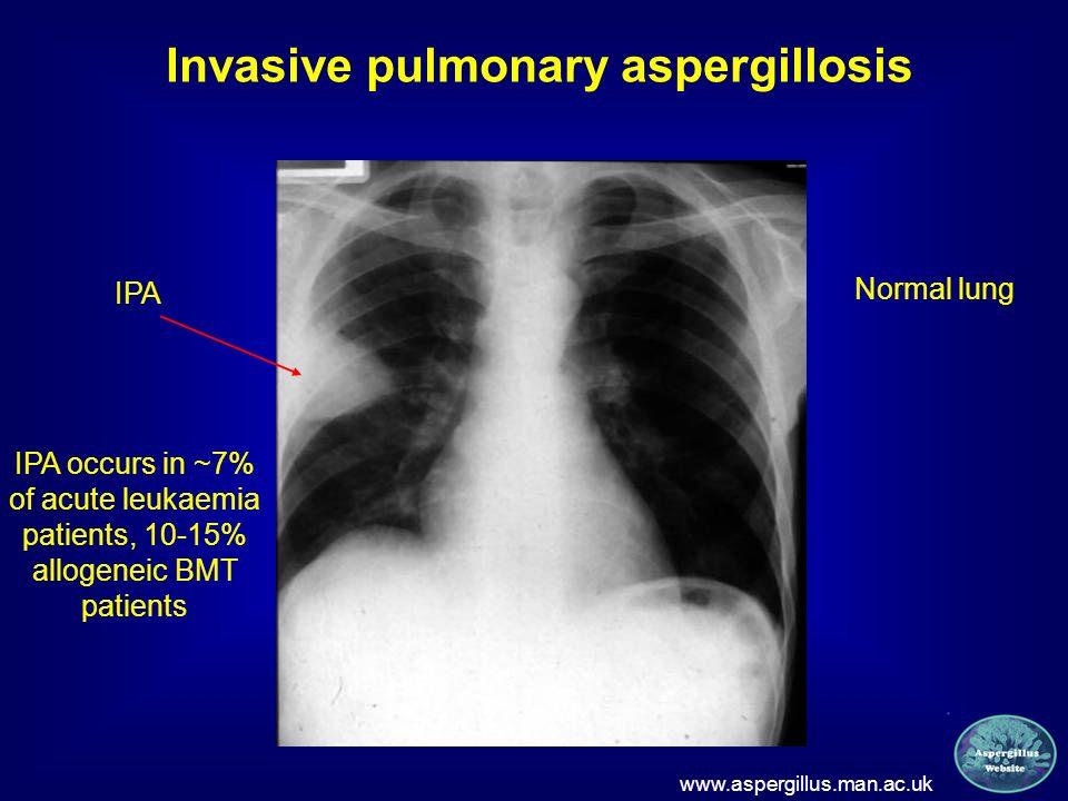 Invasive pulmonary aspergillosis