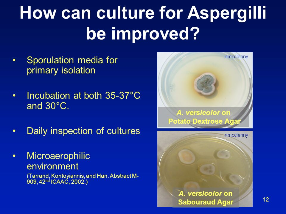 How can culture for Aspergilli be improved