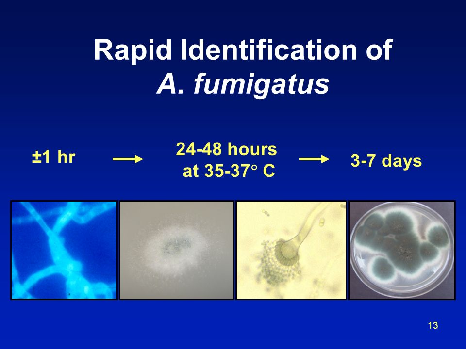 Rapid Identification of A. fumigatus