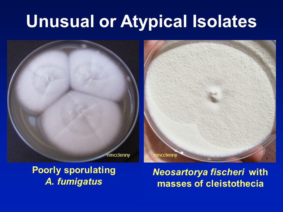 Unusual or Atypical Isolates