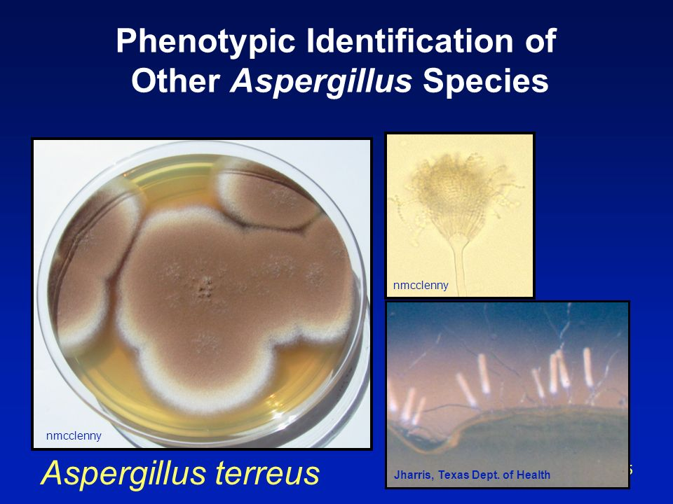 Phenotypic Identification of Other Aspergillus Species