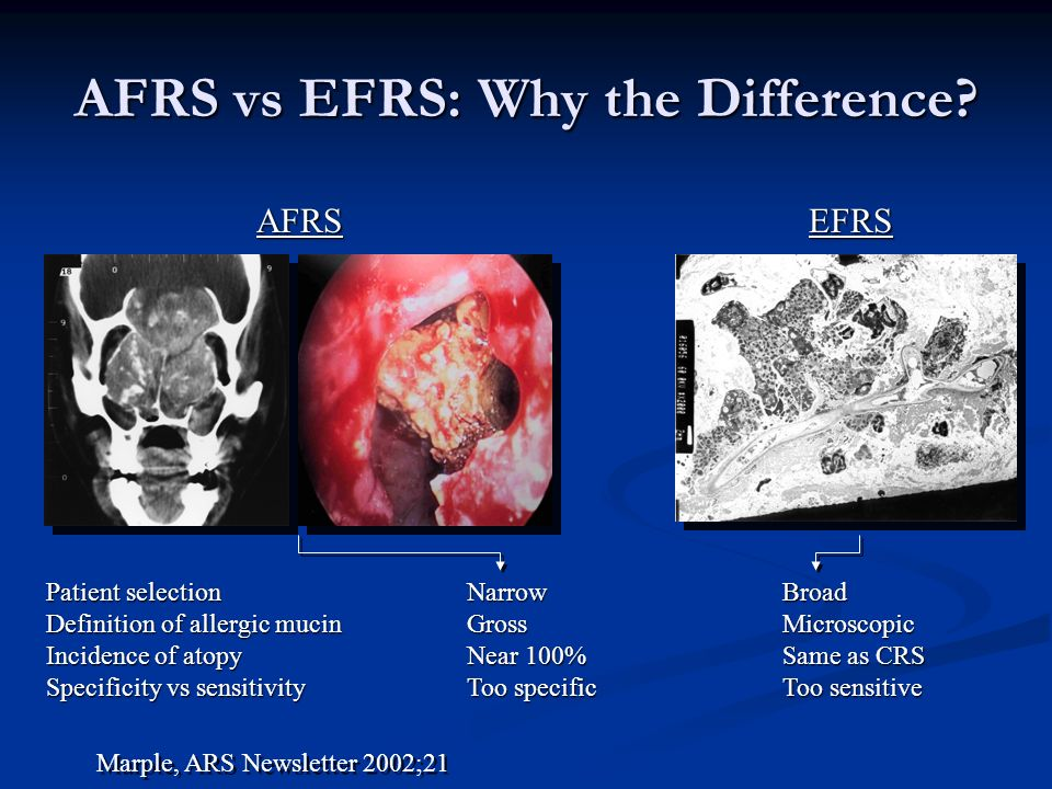 AFRS vs EFRS: Why the Difference