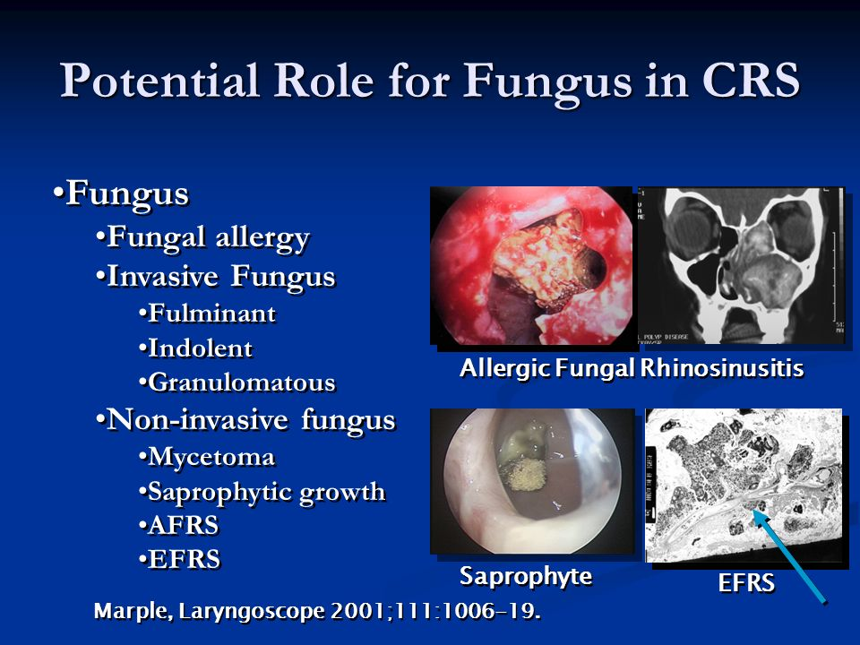 Potential Role for Fungus in CRS
