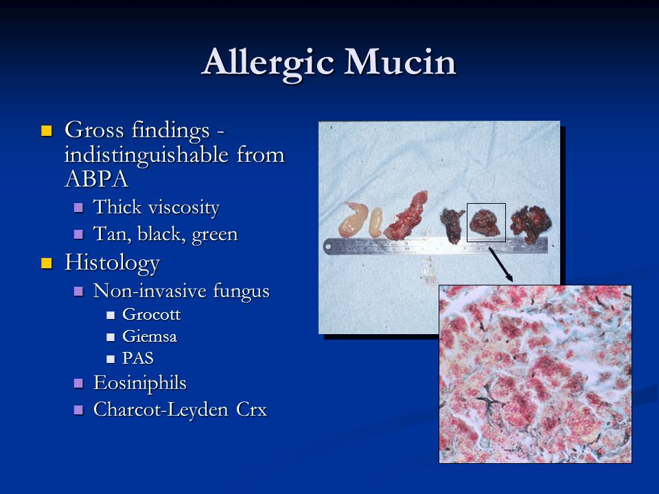 Allergic Mucin Gross findings - indistinguishable from ABPA Histology