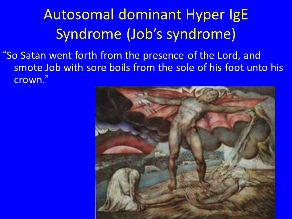 Autosomal dominant Hyper IgE Syndrome (Job's syndrome)