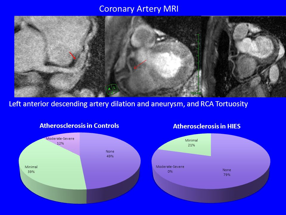 Coronary Artery MRI Left anterior descending artery dilation and aneurysm, and RCA Tortuosity