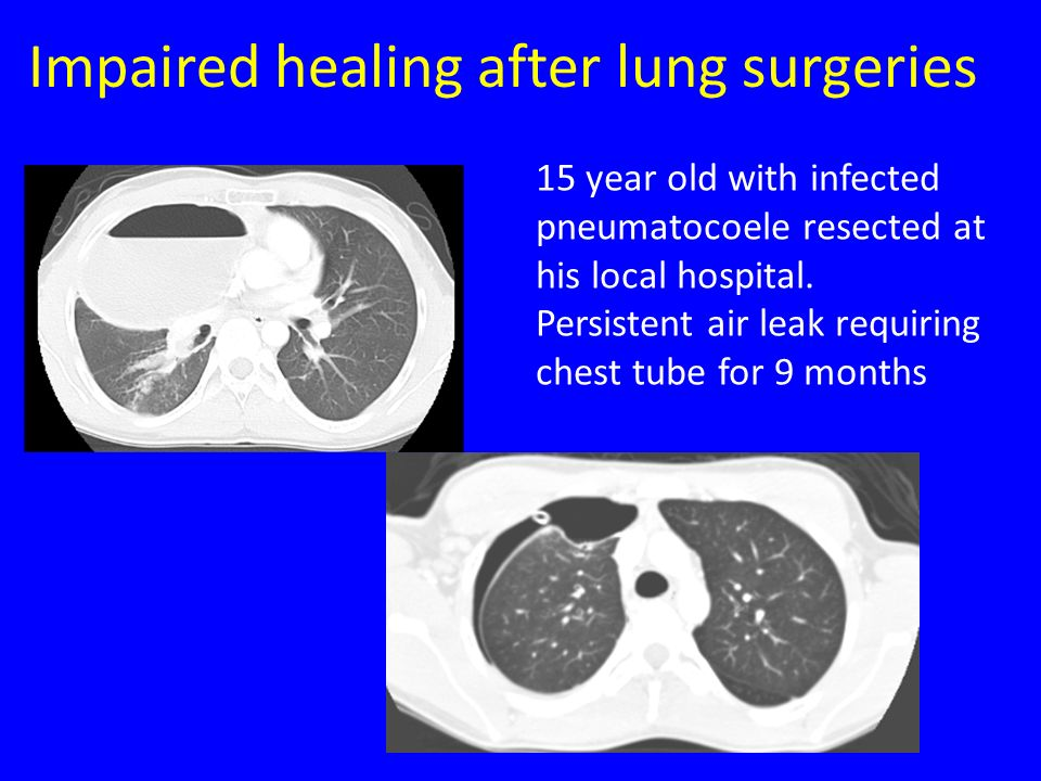 Impaired healing after lung surgeries