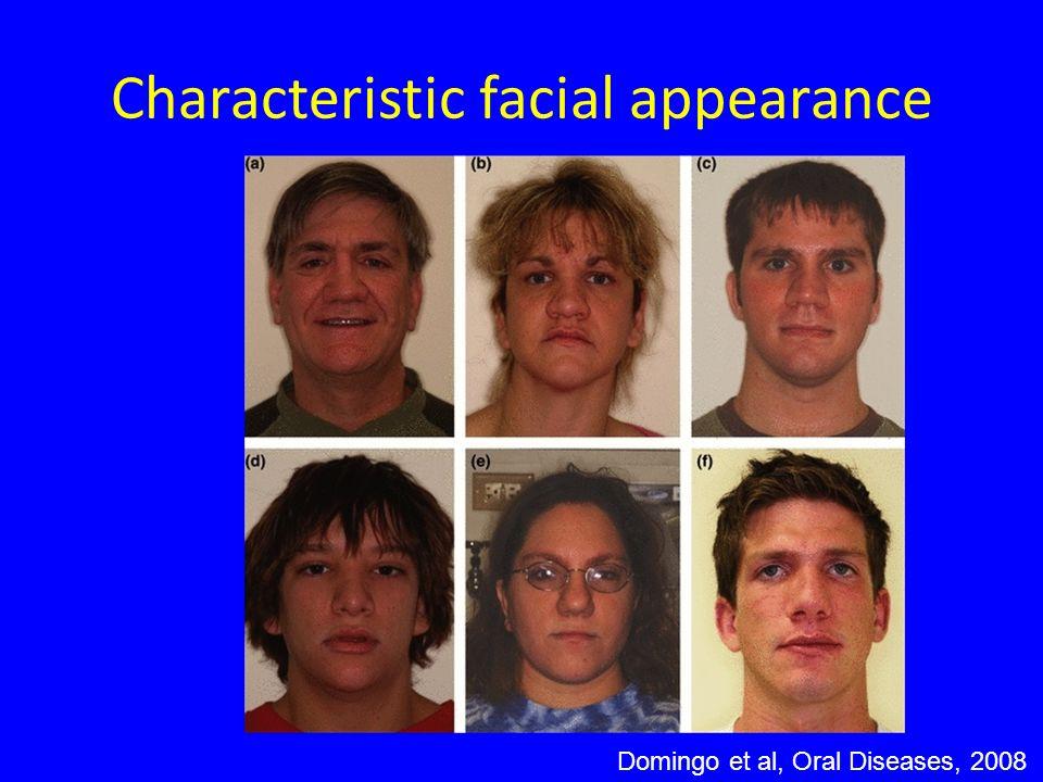 Characteristic facial appearance