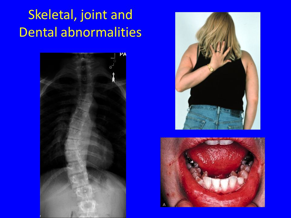 Skeletal, joint and Dental abnormalities