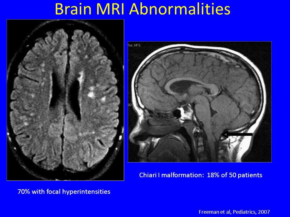Brain MRI Abnormalities