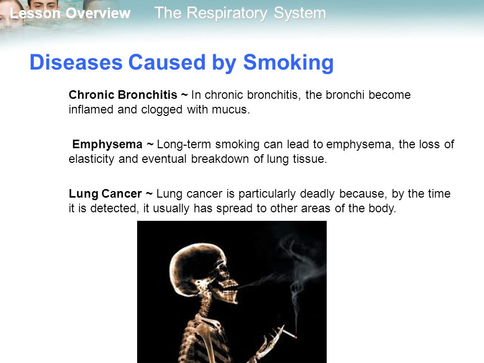 diseases caused by smoking essay
