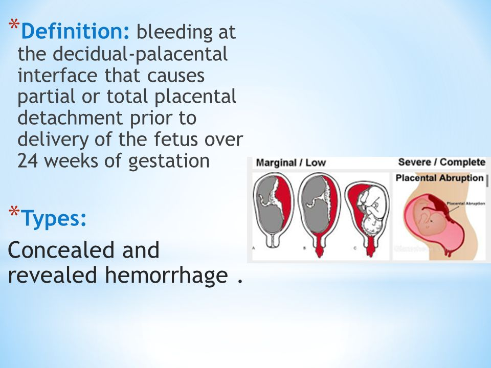 abruptio placentae