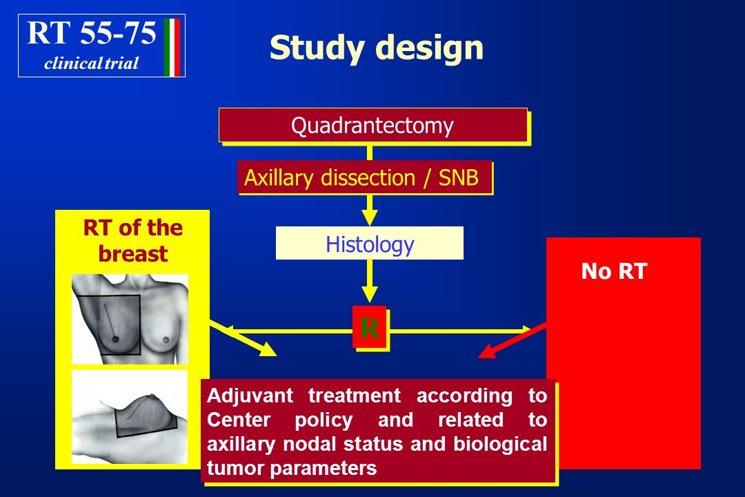 RT Study design R Quadrantectomy Axillary dissection / SNB