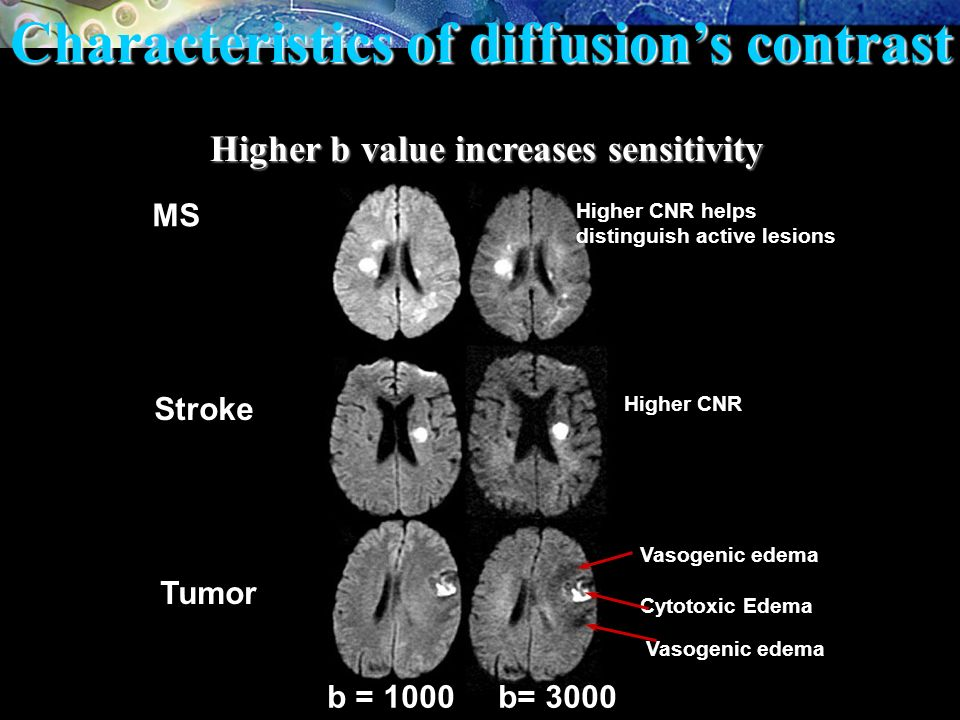 Characteristics of diffusion's contrast
