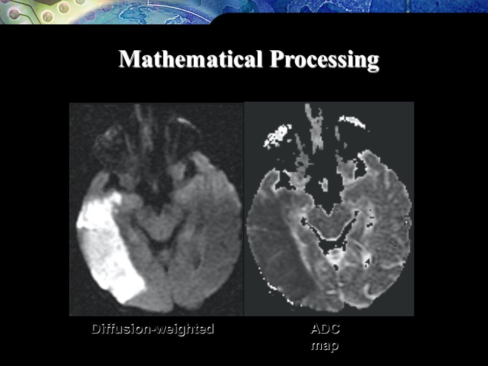 Mathematical Processing