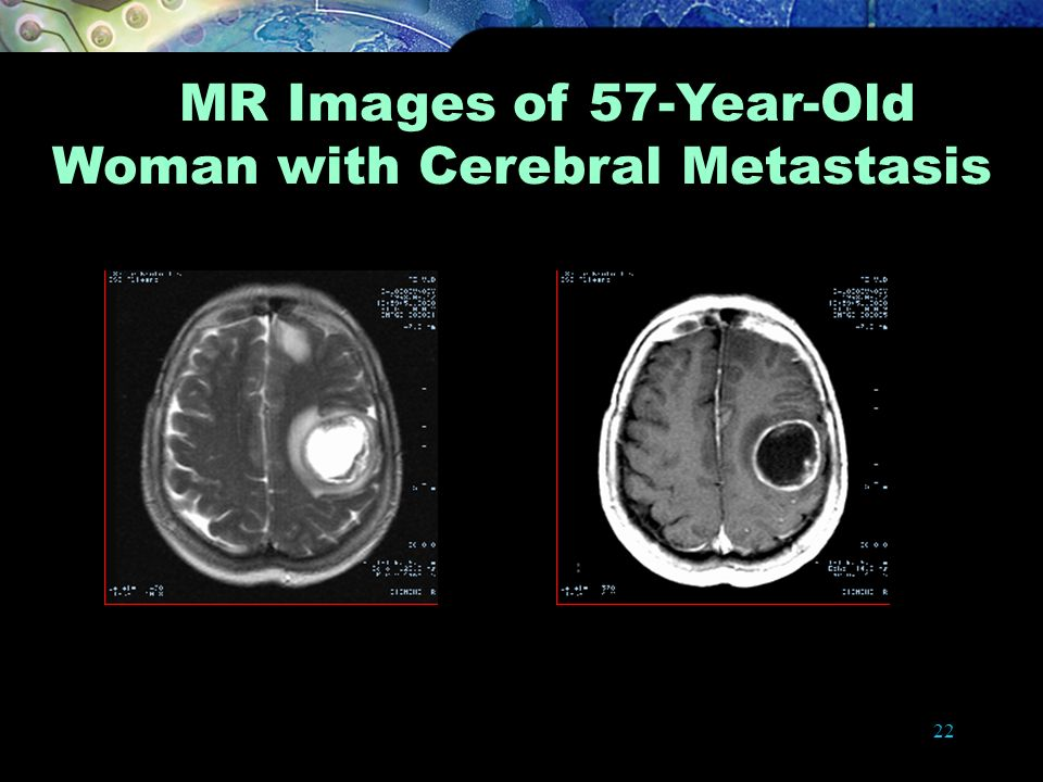 MR Images of 57-Year-Old Woman with Cerebral Metastasis