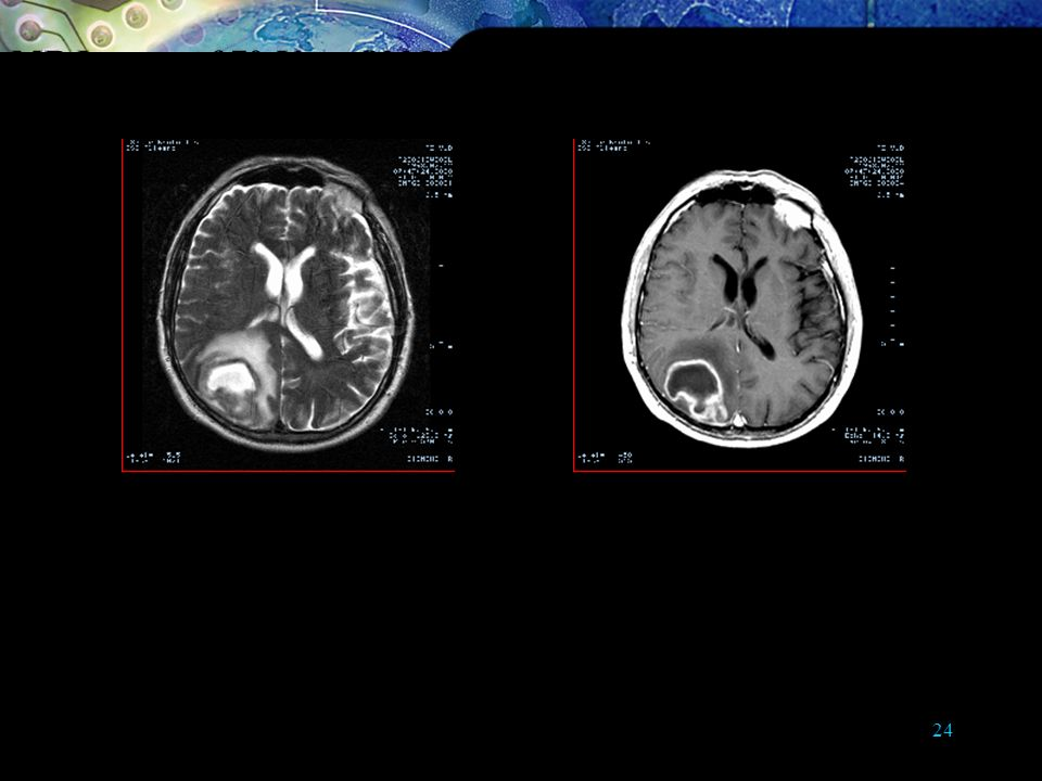MR Images of 70-Year-Old Man with History of Recent Vertigo and Disequilibrium