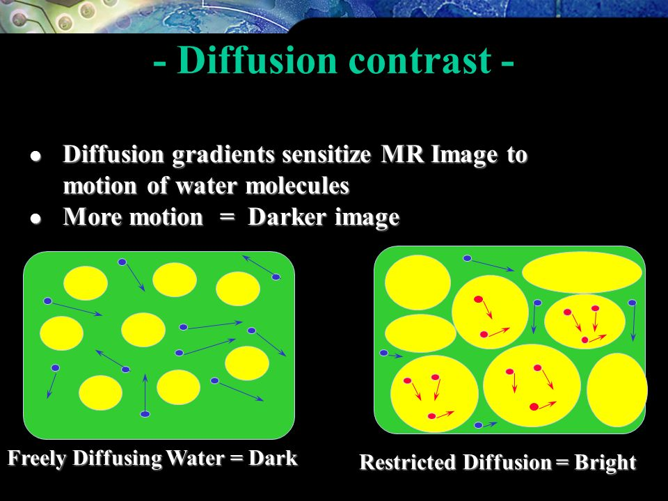 - Diffusion contrast - Diffusion gradients sensitize MR Image to motion of water molecules. More motion = Darker image.