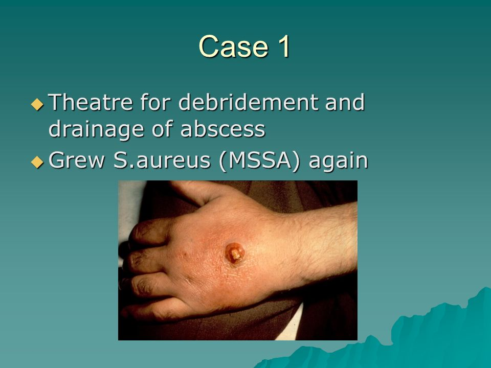 Case 1 Theatre for debridement and drainage of abscess