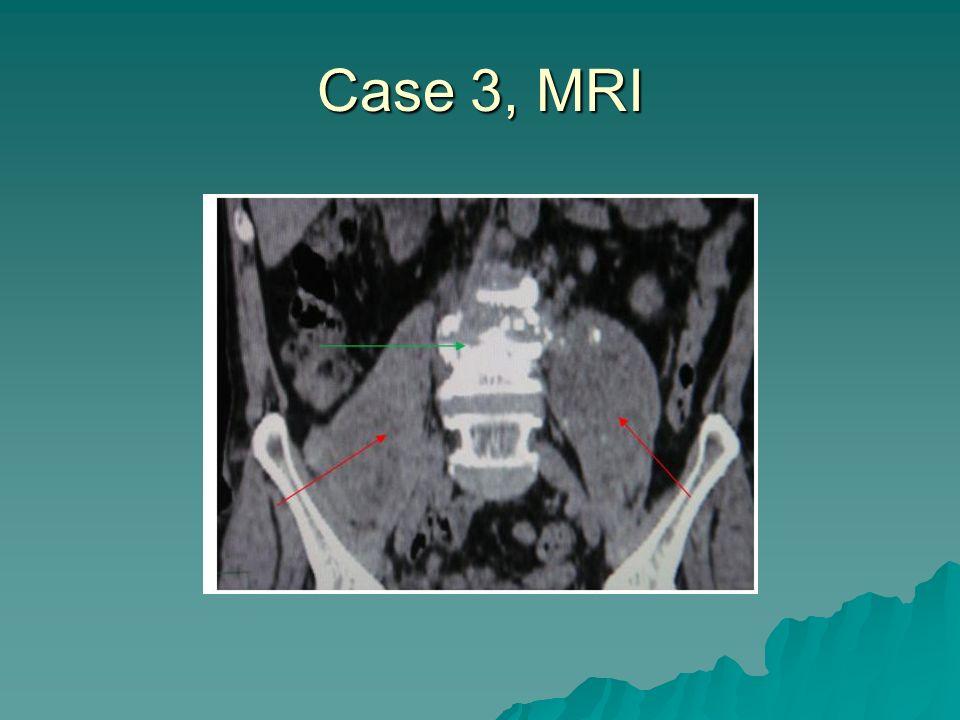 Case 3, MRI
