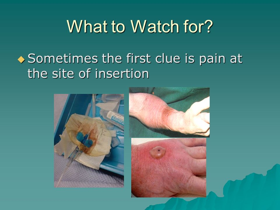 What to Watch for Sometimes the first clue is pain at the site of insertion