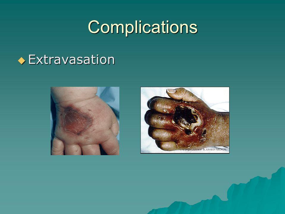 Complications Extravasation