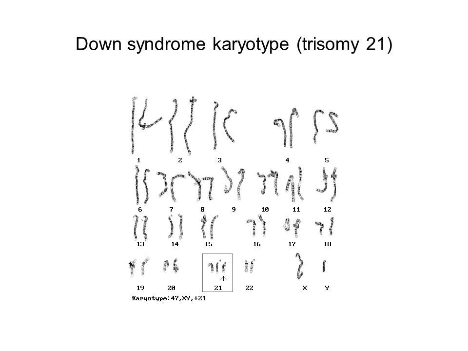 Down syndrome karyotype (trisomy 21)