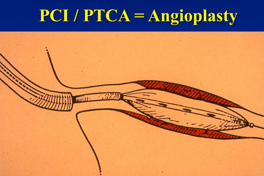 PCI / PTCA = Angioplasty