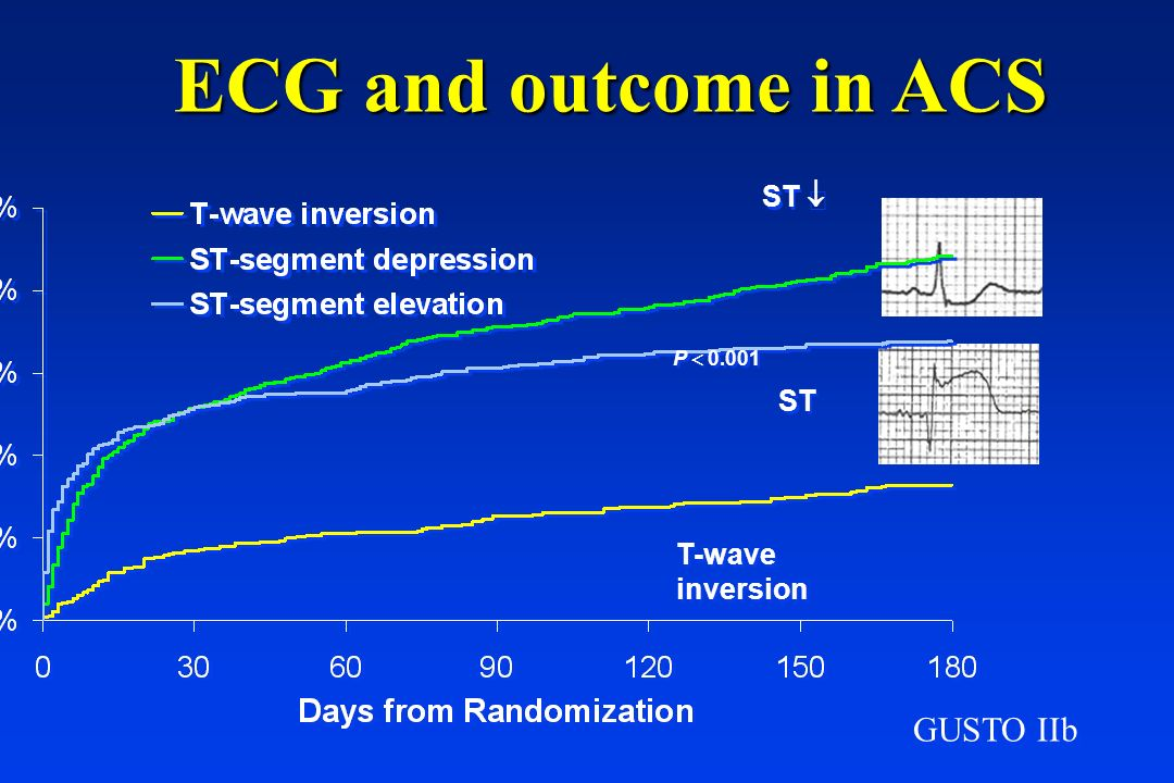 ECG and outcome in ACS ST ¯ P  0.001 ST ­ T-wave inversion GUSTO IIb