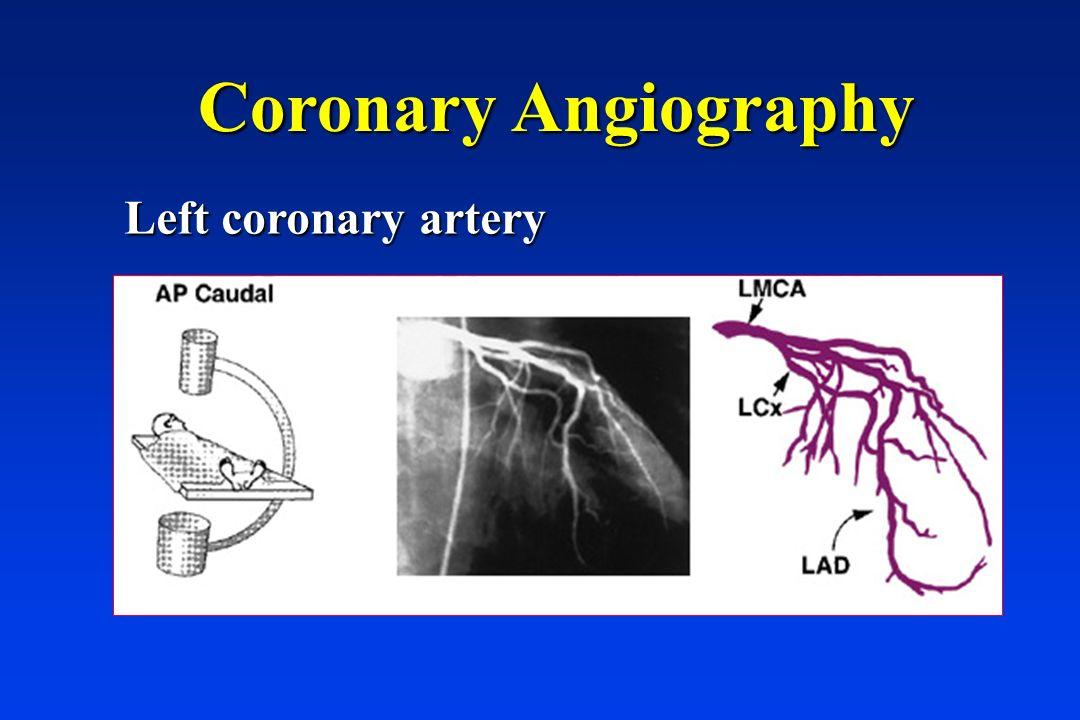 Coronary Angiography Left coronary artery