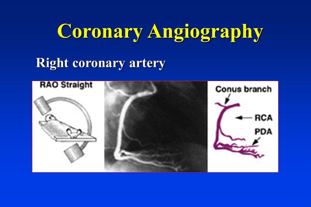 Coronary Angiography Right coronary artery