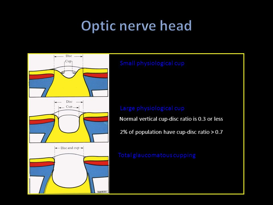 Optic nerve head 2% of population have cup-disc ratio > 0.7