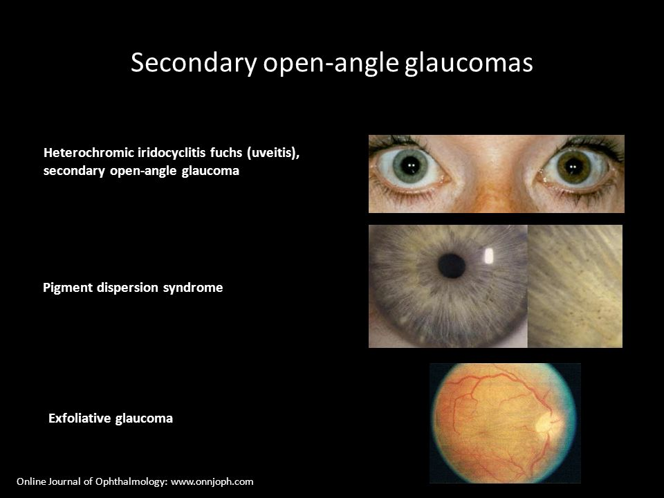 Secondary open-angle glaucomas