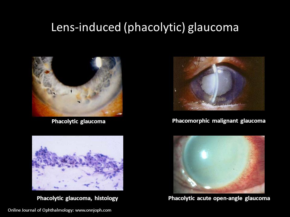 Lens-induced (phacolytic) glaucoma
