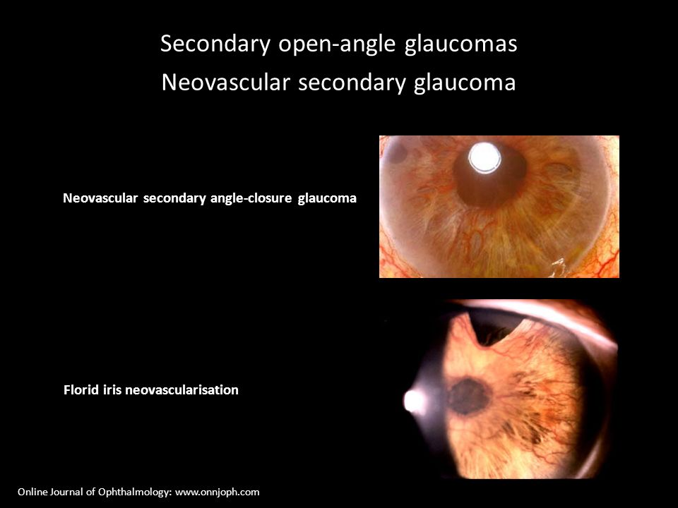 Secondary open-angle glaucomas Neovascular secondary glaucoma