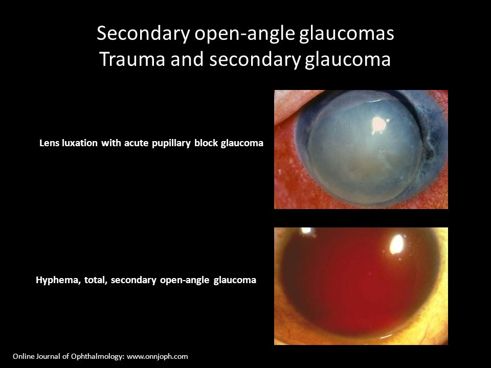 Secondary open-angle glaucomas Trauma and secondary glaucoma