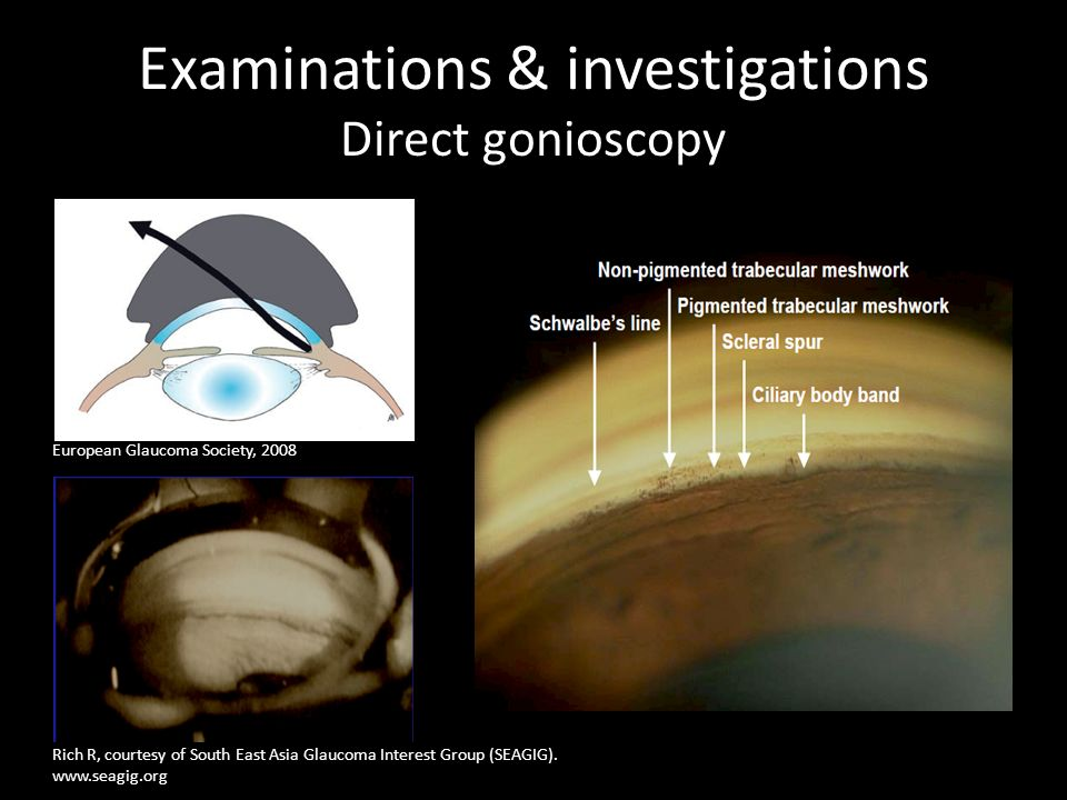 Examinations & investigations Direct gonioscopy